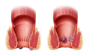 hemoroidy-odbytu2