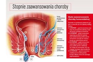 choroba-hemoroidalna-wciaz-wstydliwy-problem